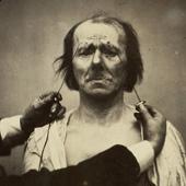 Guillaume-Benjamin Duchenne de Boulogne (1806–1875)